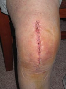 physical-therapy-knee-replacement